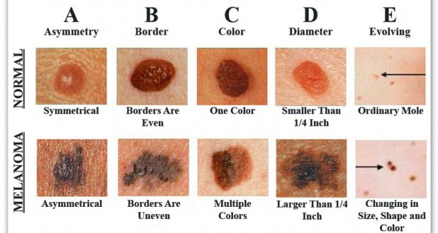 1d0708220f6dd9a21d04c98f10a9a268 How To Recognize Skin Cancer – This Could Save Your Life!
