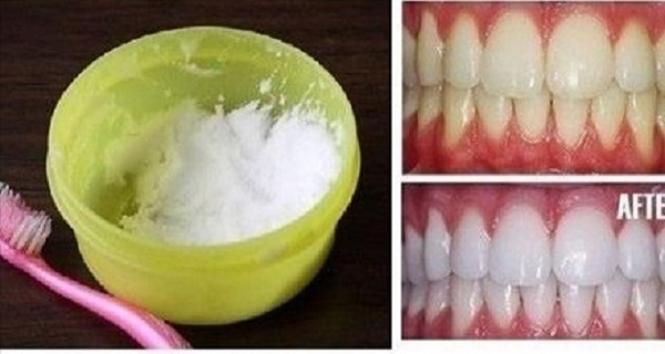 12c8402aa2f14b83d0314d8cbbe4915c DIY: Natural Tooth Whitening in Minutes at Home