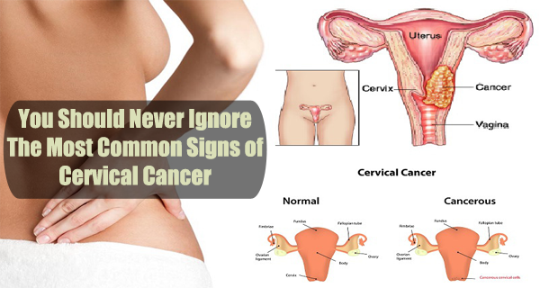 07ccae127b8fa5d38f4d7d89358c7389 Warning – You Should Never Ignore The Most Common Signs of Cervical Cancer