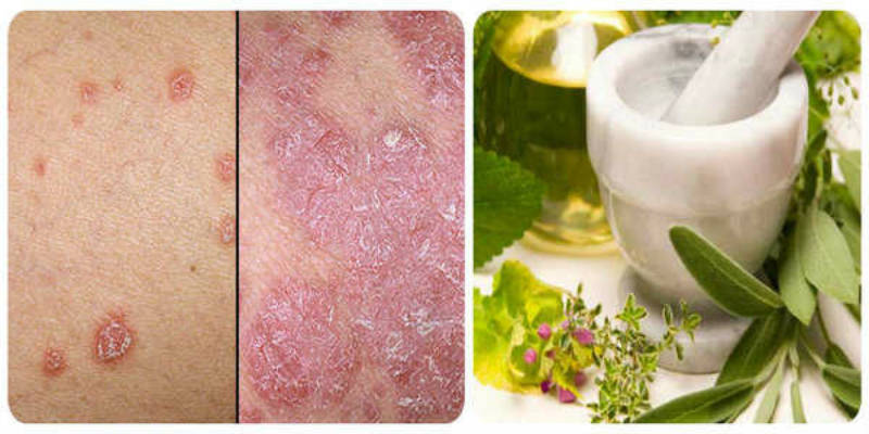 2ff87110761157c538fa639bbf1b798b Natural Cure for the Psoriasis and Other Skin Diseases With This Recipe