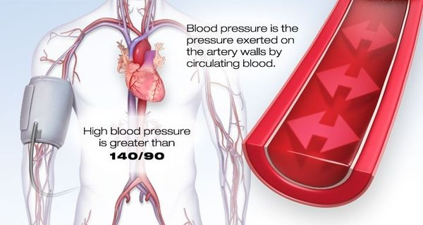 6d97f647b5db0aa222752e84ef0519e2 Home Remedies for High Blood Pressure