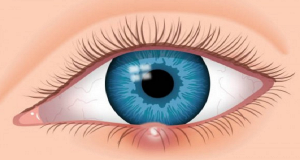 c0490955767c4fb4b9970157a0d04aee How to Naturally and Quickly Cure an Eye Sty?